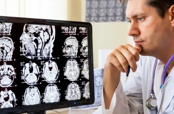 Доктор осматривает снимки мозга пациента